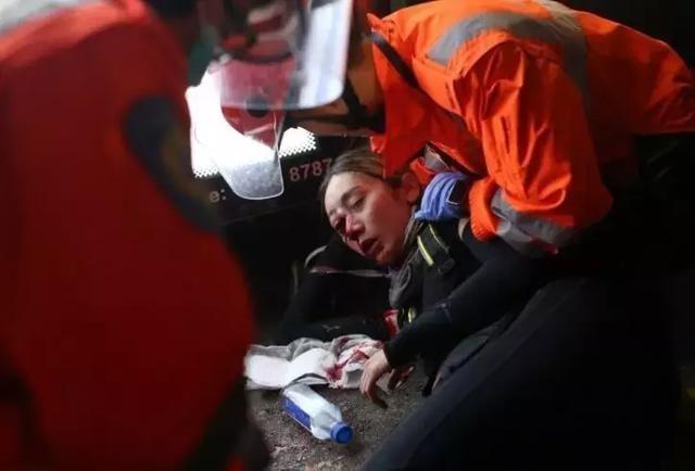 """一女性非法示威者昨晚""""被打爆右眼"""",有爆料称警方系被陷害"""